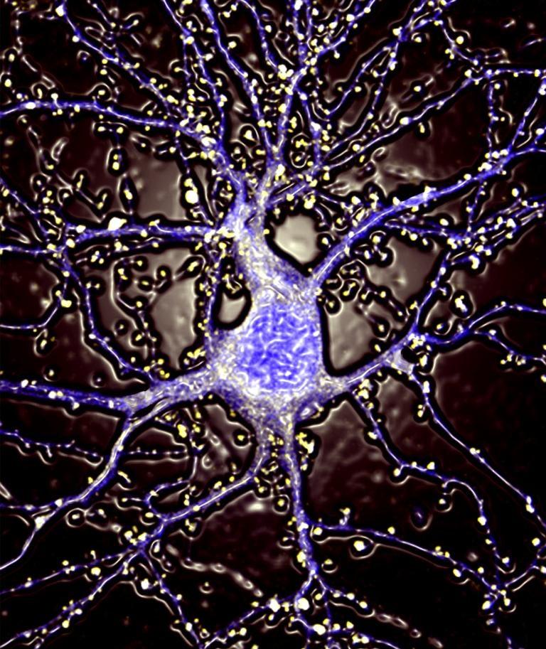 Hippocampal neuron