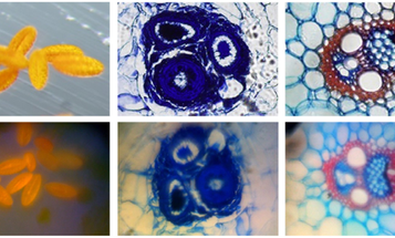 $50 Hack Turns Your iPhone Into 350x Microscope