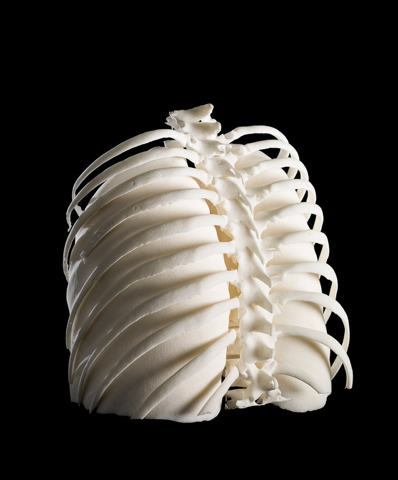 3D-printed Lungs in Ribcage
