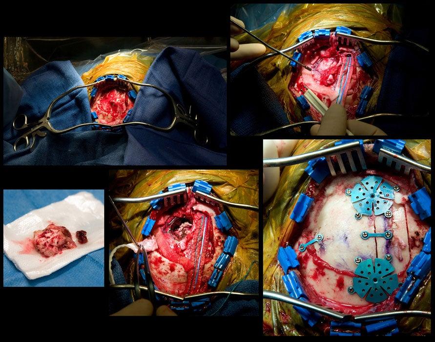 brain-tumor-removal.jpg