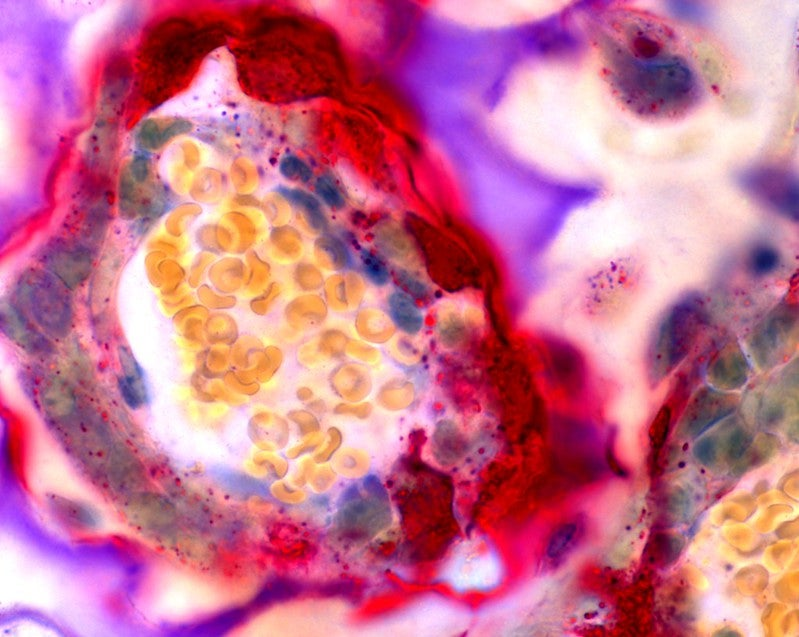 Osteoclast cells make way for new bone growth in a mouse femur.
